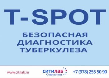 T-SPOT.TB   Т-СПОТ.ТБ (диагностика латентной и активной туберкулезной инфекции
