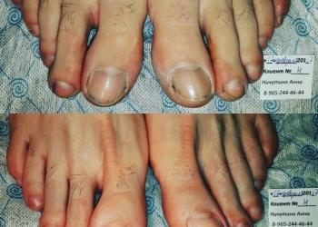 Медицинский педикюр, вросшие ногти, ортезы индивидуально.