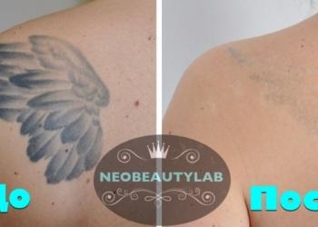 Лазерное удаление тату, сведение татуажа