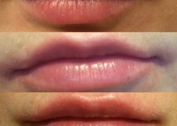 Врач Косметолог,Увеличение губ,Омоложения лица